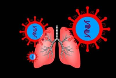 RNA-SARS-COV2